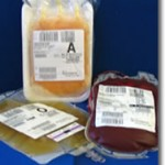 Correct Procedure for Blood Transfusion and Transfusion of Blood Products